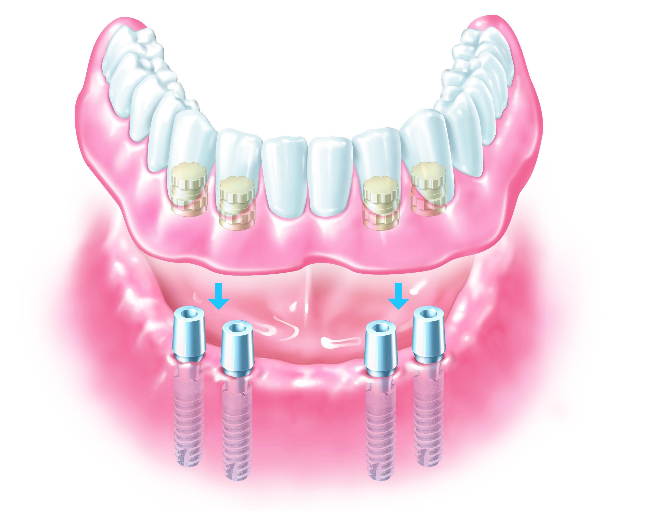 fixing loose denture