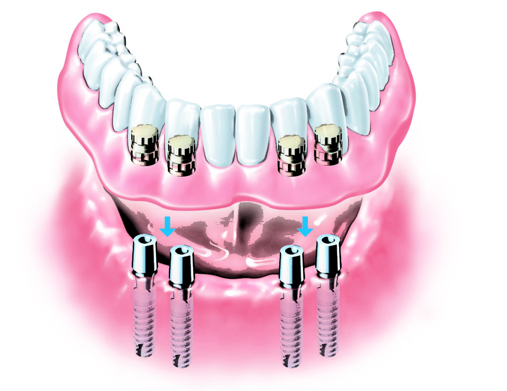 removable denture implant