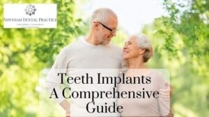 everything you need to know about teeth implants